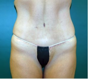 Abdominoplasty 0240 After