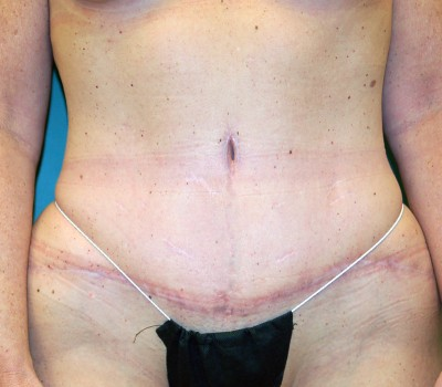 Abdominoplasty Front 0607 After