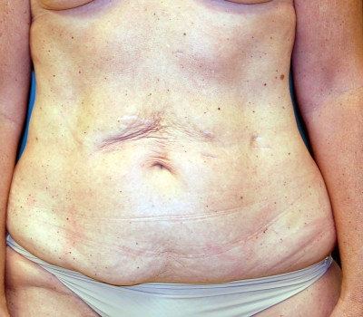 Abdominoplasty Front 0607 Before