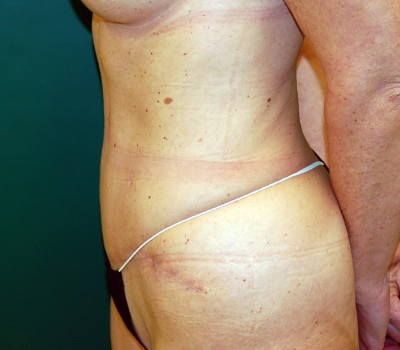 Abdominoplasty Side 0607 After