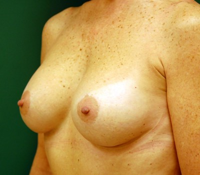 Breast Augmentation Oblique 0593 After