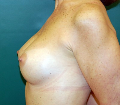 Breast Augmentation Side 0593 After