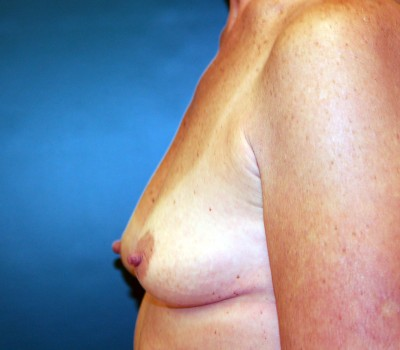 Breast Augmentation Side 0593 Before