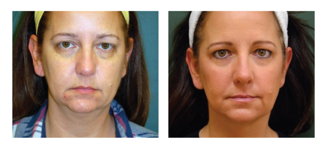 Chin Liposuction with Reaction