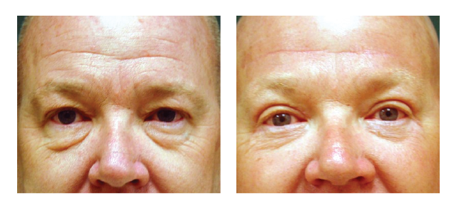Upper and Lower Eyelids