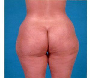Abdominoplasty 0240 Before