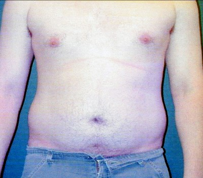 Abdominoplasty 0240 Before