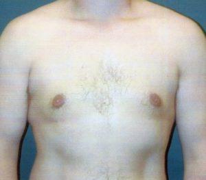 Abdominoplasty 0240 After