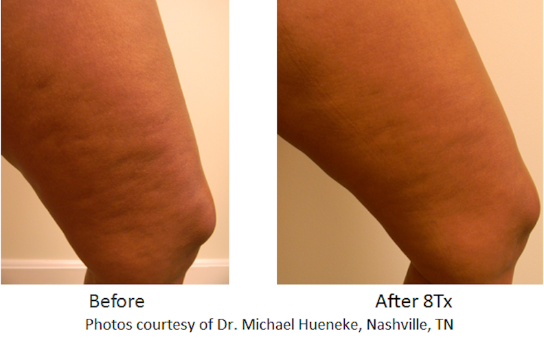 Cellulite Reduction/Body Contouring