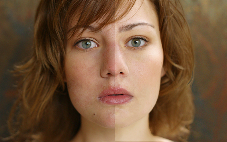 Pigmented Vascular Lesions